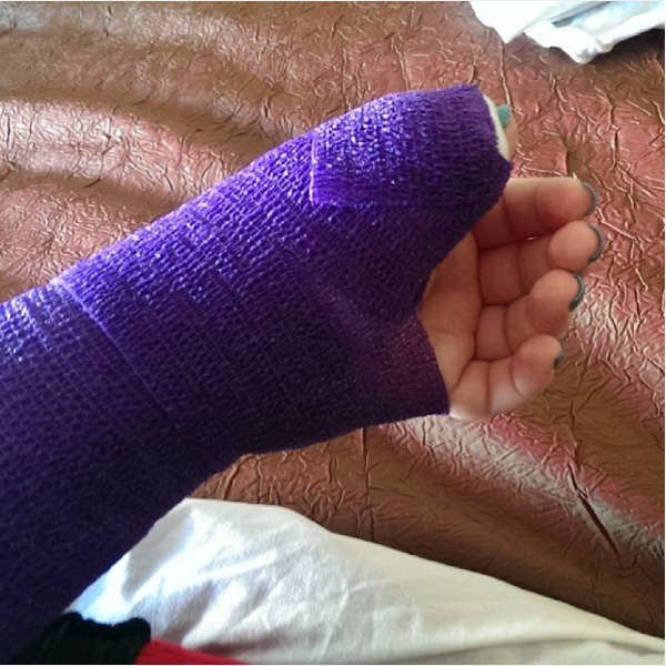 Skiier with broken wrist